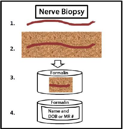 Nerve Biopsy